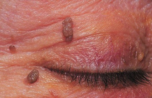 How to remove papillomas on skin. How to remove papillomas on skin