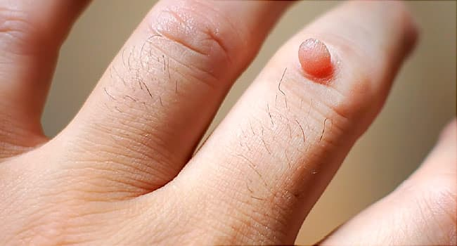 which hpv virus causes common warts