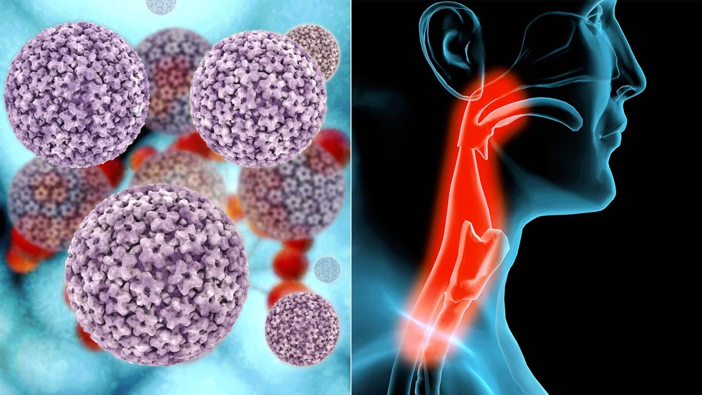 Hpv for throat - Hpv and throat cancer statistics