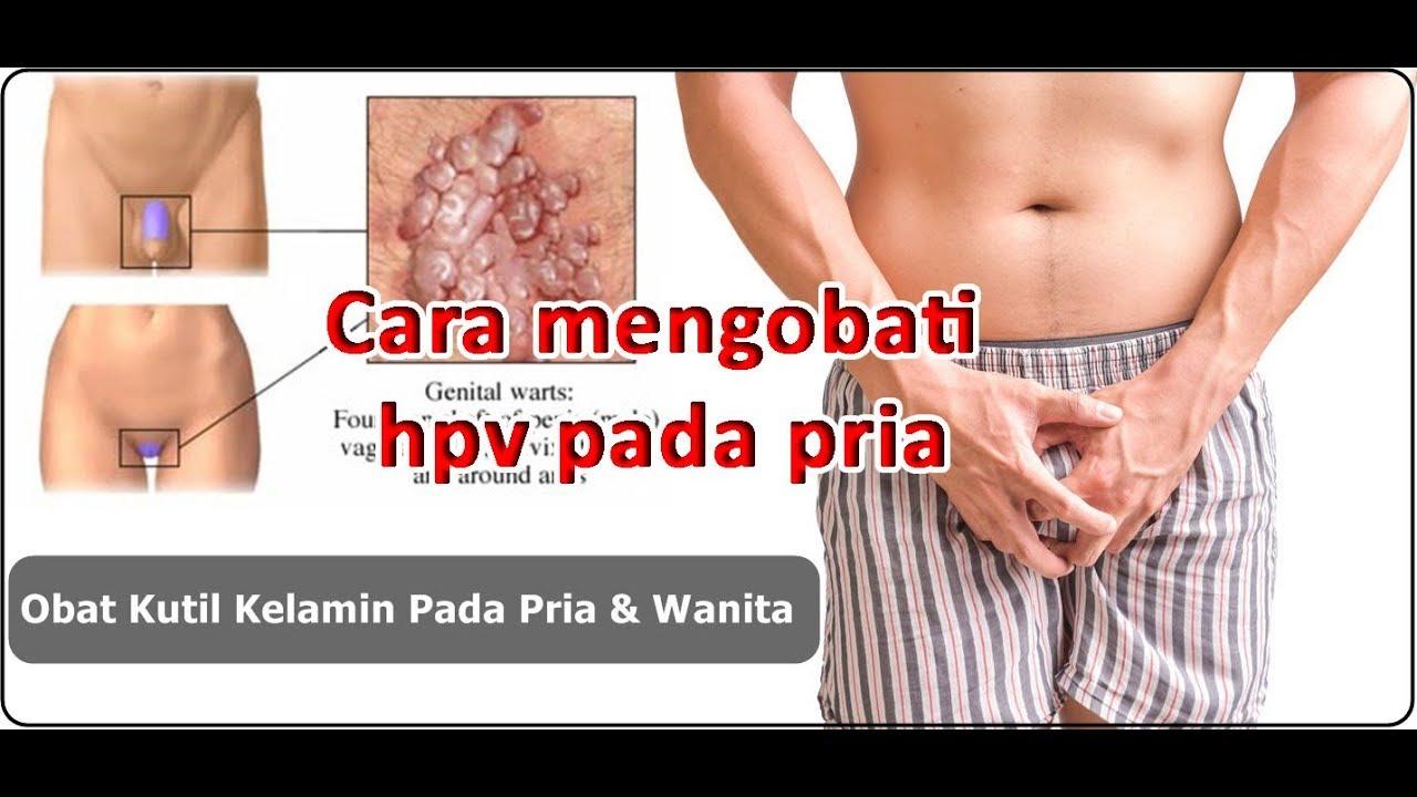 pot elimina papiloma cu un fir does hpv cause laryngeal cancer