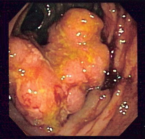 cancer malign la colon