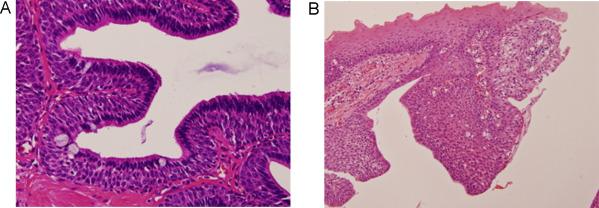papilloma of parotid gland tratamentul unguentului de veruci genitale