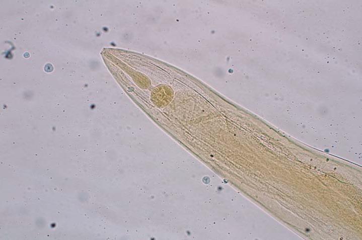 Enterobius vermicularis behandlung