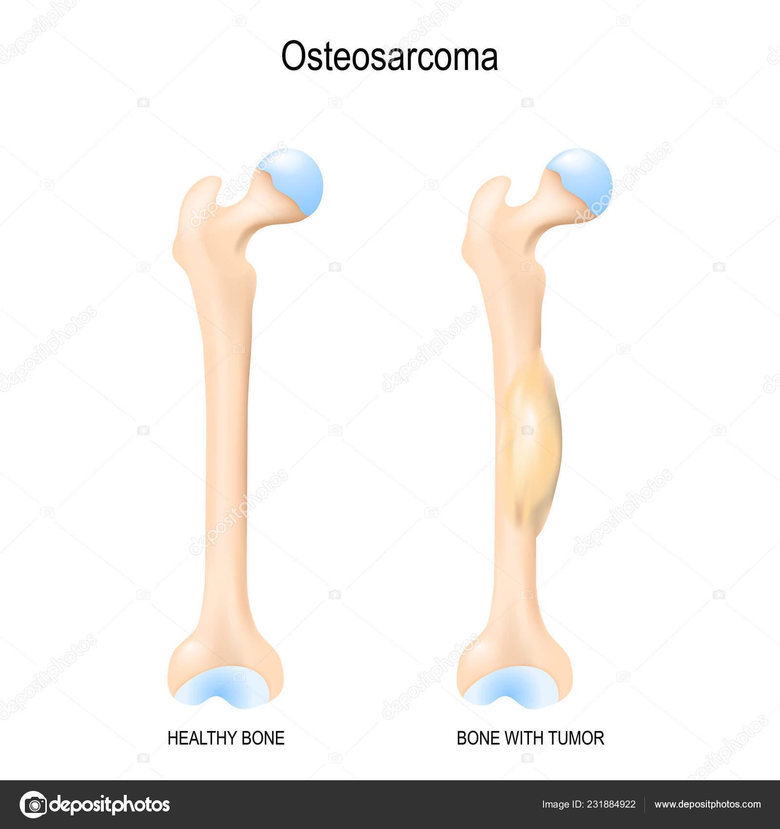 cancer sarcoma maligno