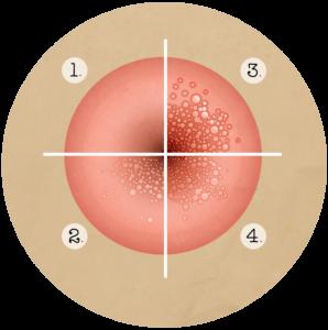 Traitement du papillomavirus chez la femme Papillomavirus humain chez les femmes