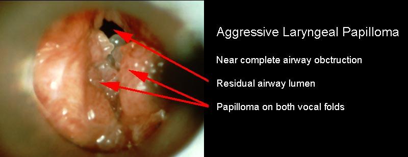 Papillomatosis therapy. Adjuvant therapy for recurrent respiratory papillomatosis,
