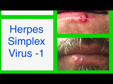 hpv virus and cold sores