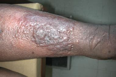 Papillomas lymphedema, Lymphedema pitting   Blog - Intraductal papilloma pathophysiology medscape