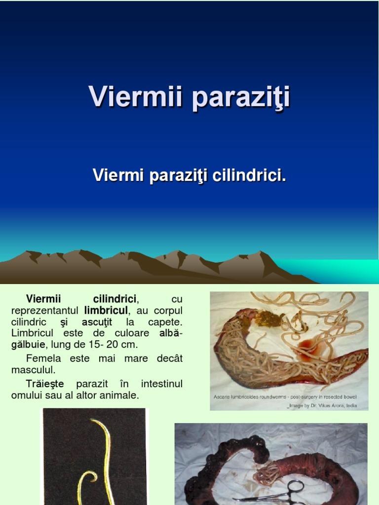 medicamente moderne pentru viermi pentru viermi picături pentru ochi împotriva paraziților