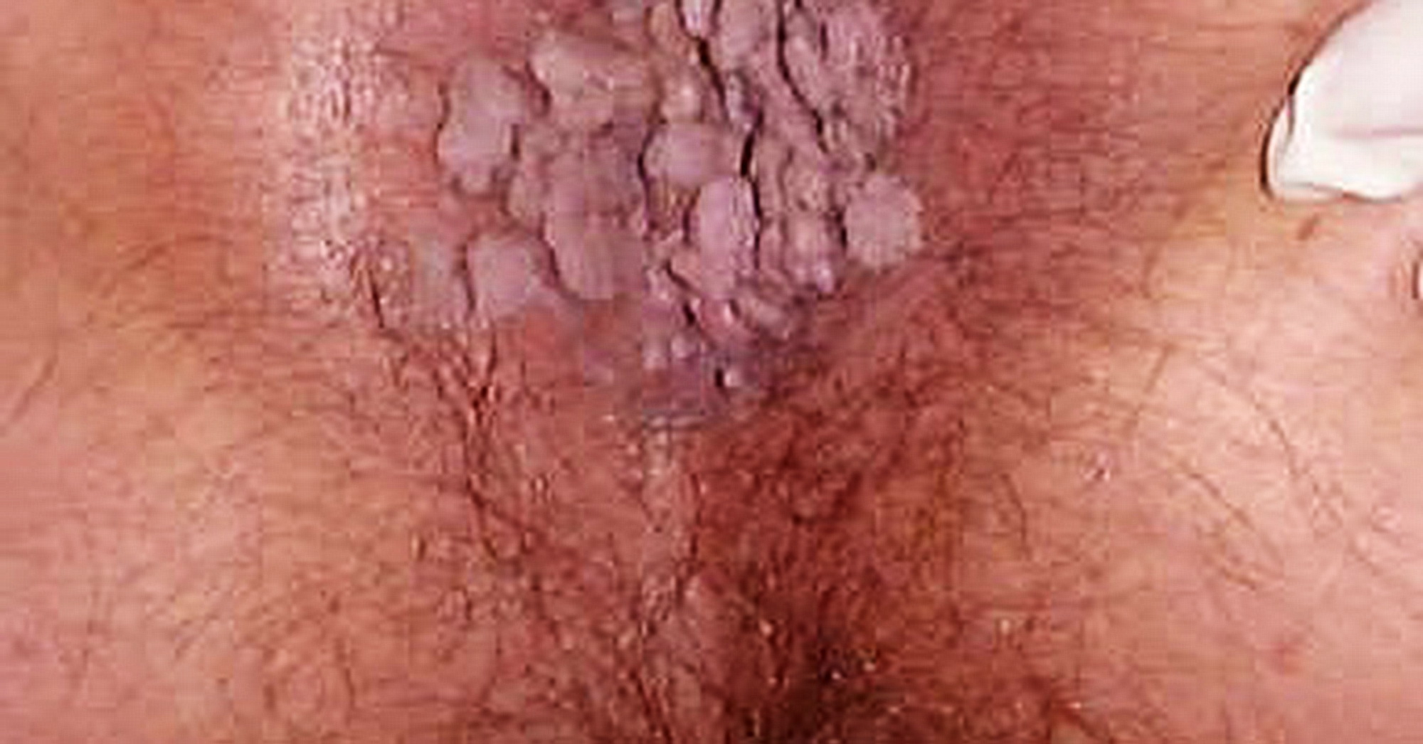 Infezione papilloma virus sintomi - thecroppers.ro