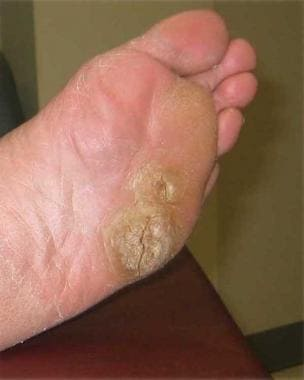 warts cancer symptoms