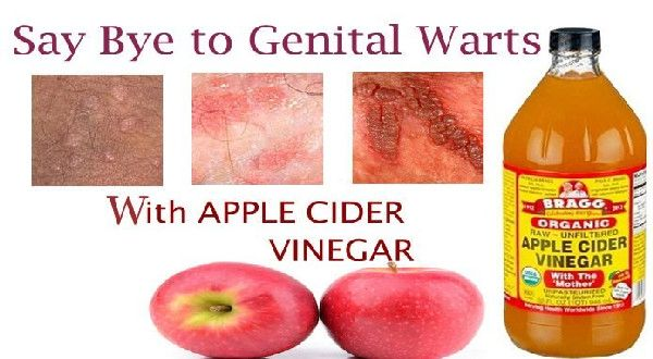 hpv natural cures warts