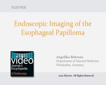 define esophageal papilloma