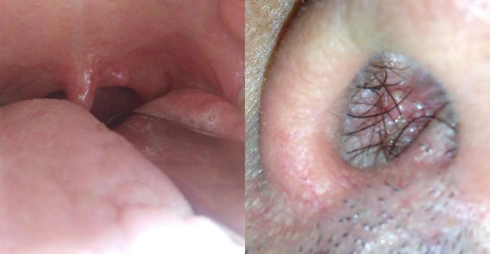 Sintomi da papilloma virus alla lingua, Navigare comentarii