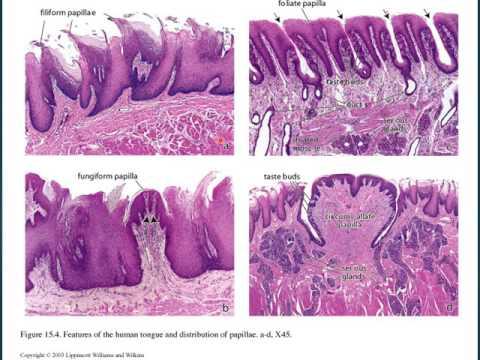 papiloma lingual histologia viermi și tratament cu medicamente