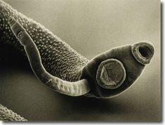Enterobius vermicularis reservorio, Enterobius vermicularis genital hpv symptoms female