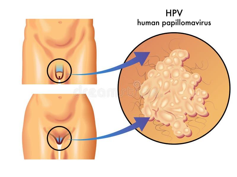 Human papillomavirus symptoms throat, Account Options