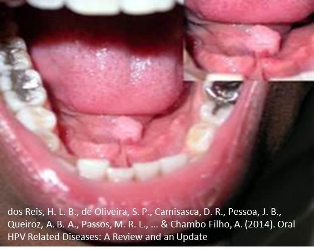 Hpv papilloma mouth