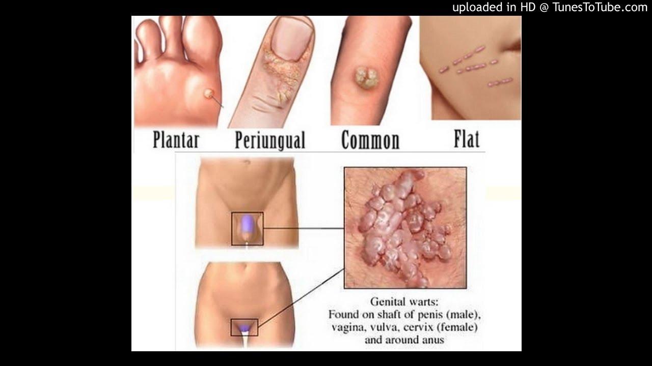 viermii din plămâni sunt simptome ale tratamentului colon detox plan