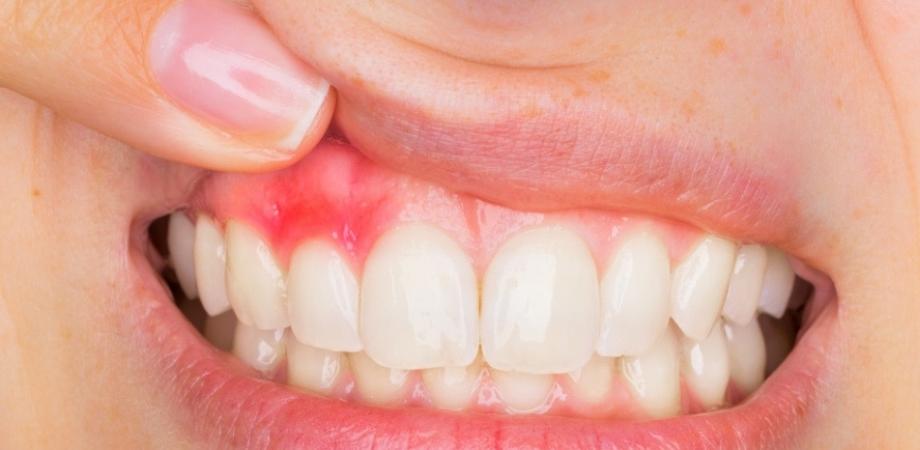 afecțiuni dentare pediatrice hpv e lingua bianca