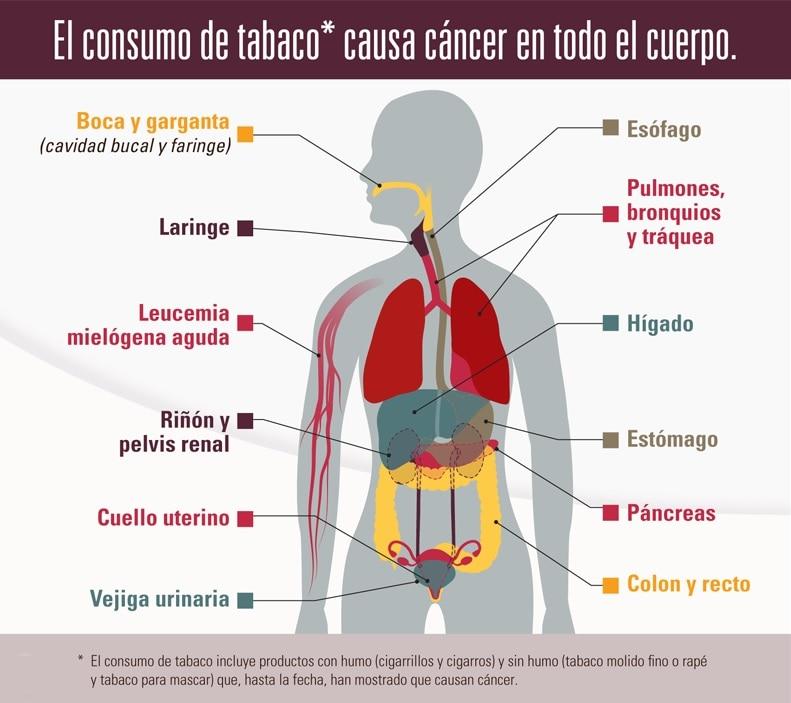 cancer de colon higado y pulmones