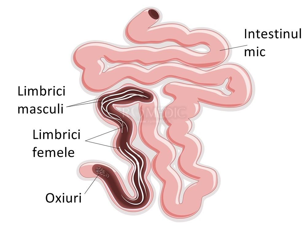 tratamentul simptomelor viermilor hepatici