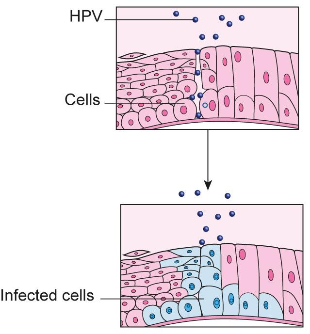Cervical cancer high risk hpv, Traducere
