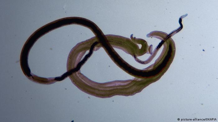 Schistosomiasis meaning in urdu