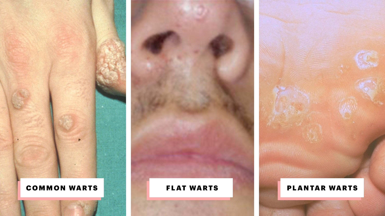 which hpv virus causes common warts îndepărtarea papiloamelor pe pleoape