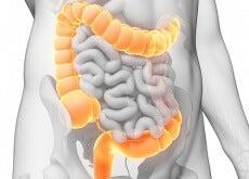 detoxifiez colonul în mod natural que es oxiuros sintomas