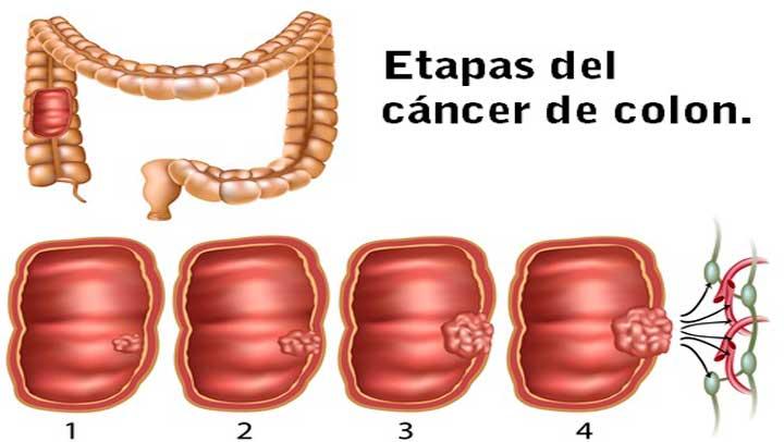 Cancer de colon etapas y sintomas - thecroppers.ro
