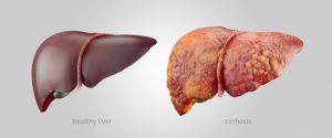 Cancerul hepatic sau cancerul la ficat: cauze, simptome si tratament
