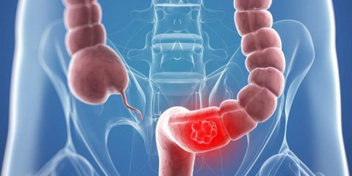 Semne și simptome ale cancerului de colon la bărbați