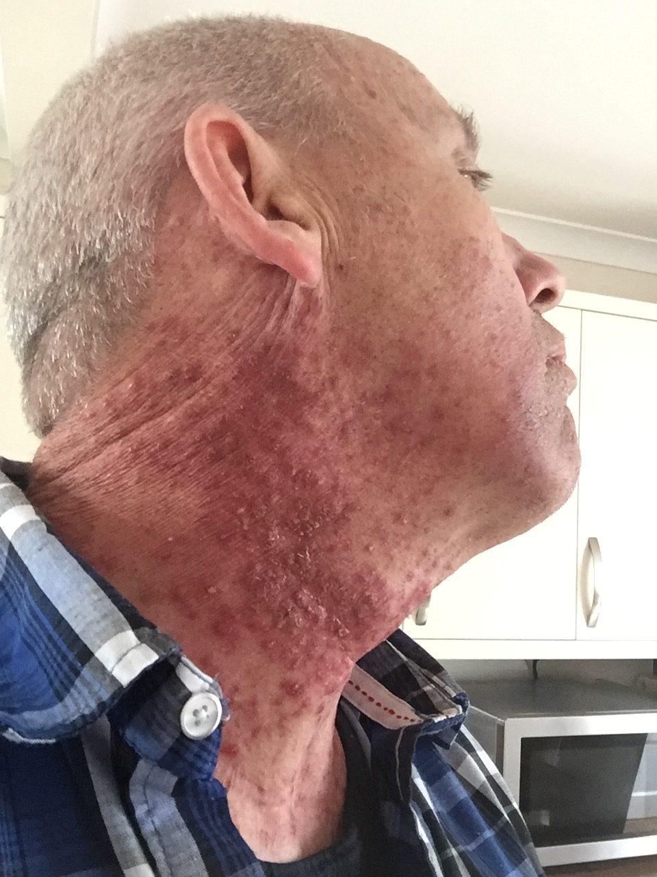 hpv and cancer of the throat ce să bea din paraziți în tablete