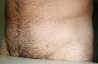 sarcina si nasterea cu HPV