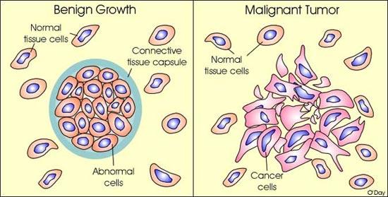 Benign cancer spots