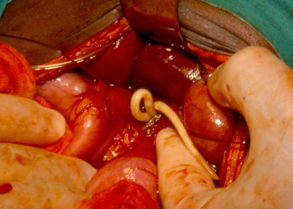 Medicamente helminthiasis pentru tratament - thecroppers.ro
