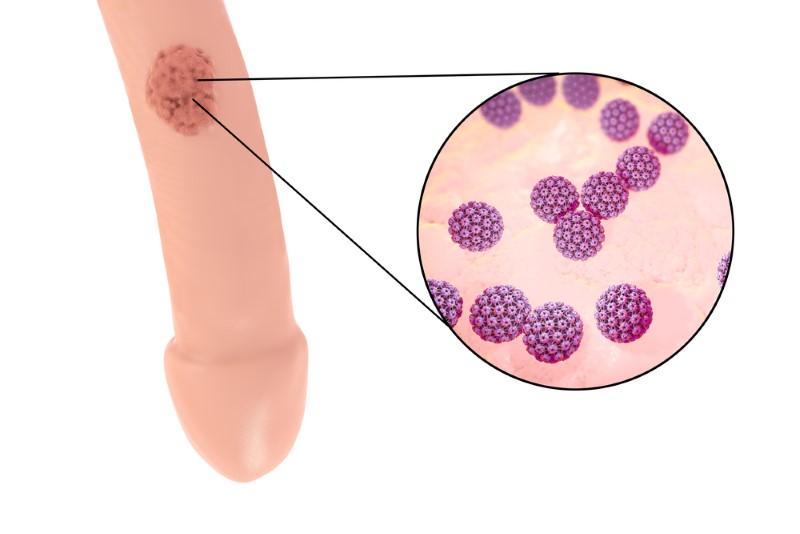 hpv virus ansteckung durch mann vaccin papillomavirus et cancer