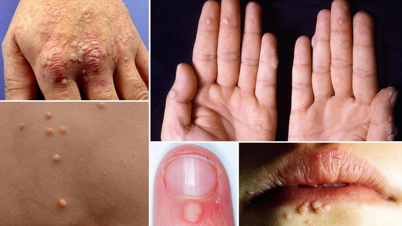 Hpv warze finger. Hpv finger warts treatment - Verruca Vulgaris, Hpv treatment for warts