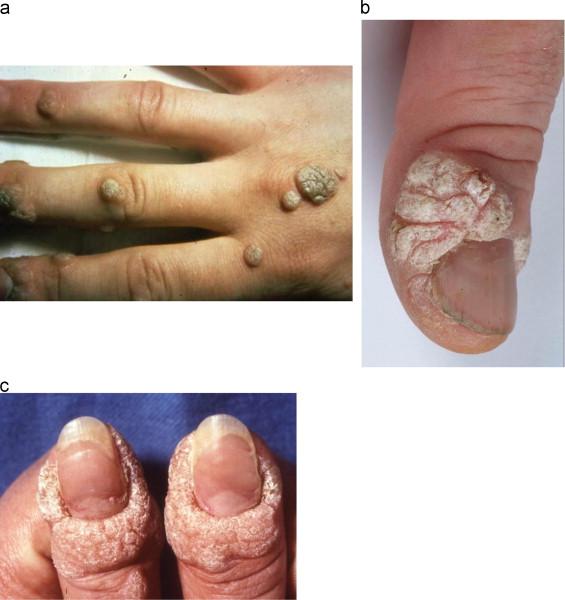 Human papillomavirus perianal warts - Human papillomavirus anogenital warts