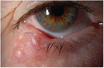 Papillomatosis cutis confluens et reticularis Papilloma in corner of eye - thecroppers.ro