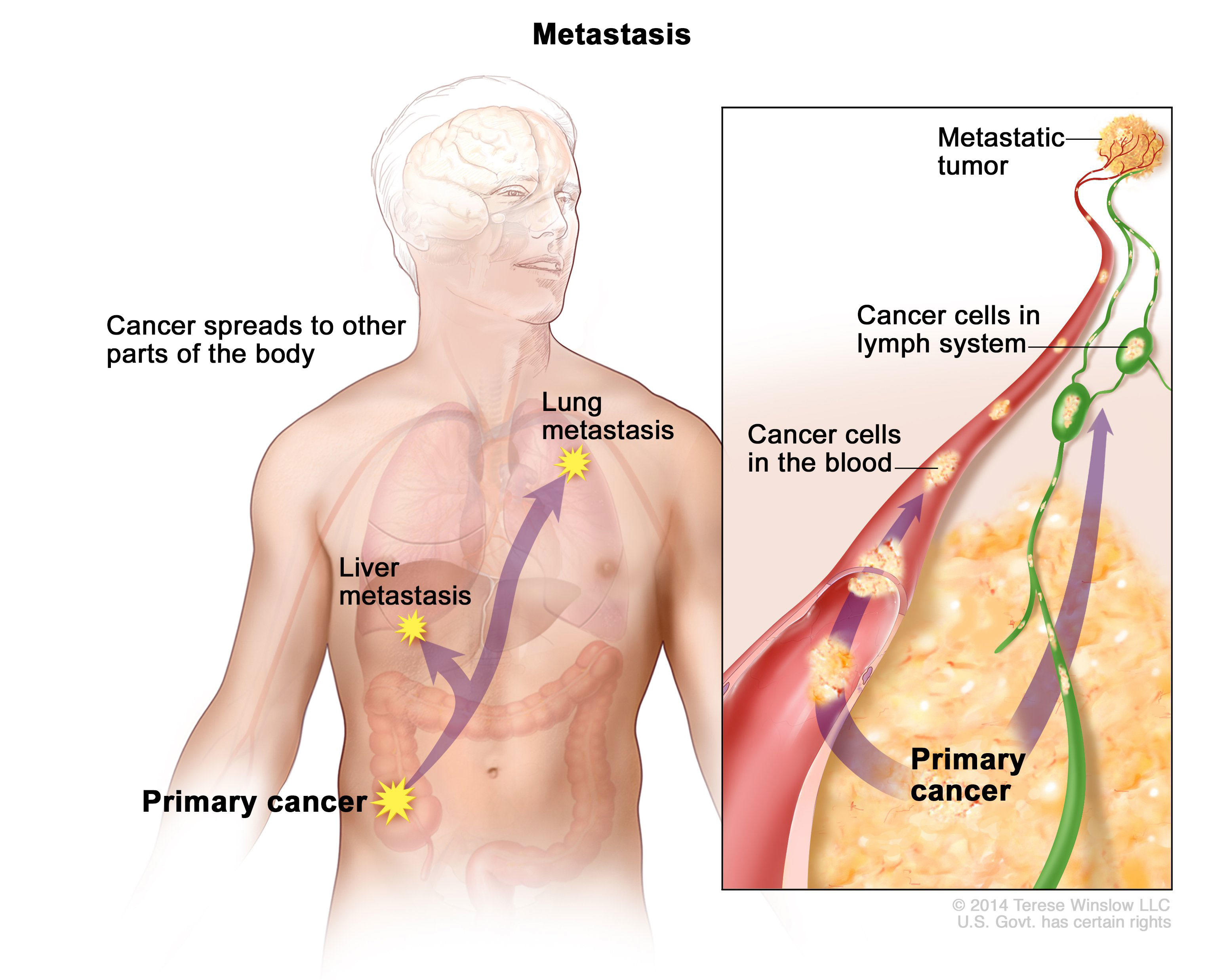 Aggressive cancer how long to live -