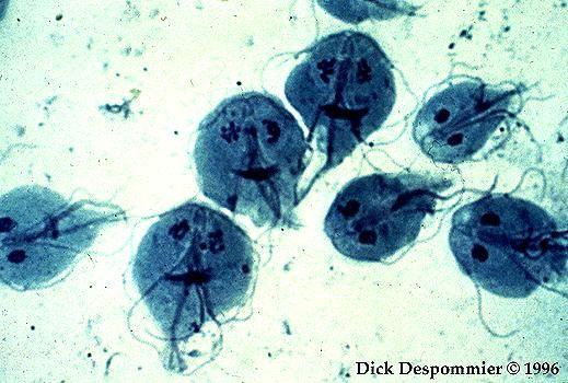 Paraziti ve strevech u deti. Giardiaza Yandex Paraziti ve strevech u deti