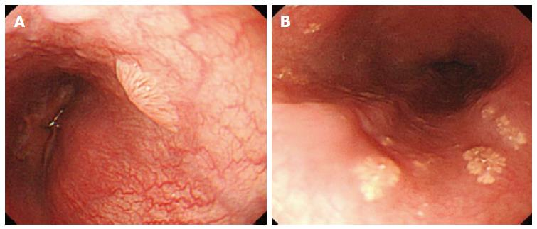 Squamous papilloma esophageal - thecroppers.ro - What causes esophageal papilloma