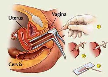 Papilloma virus donne sintomi