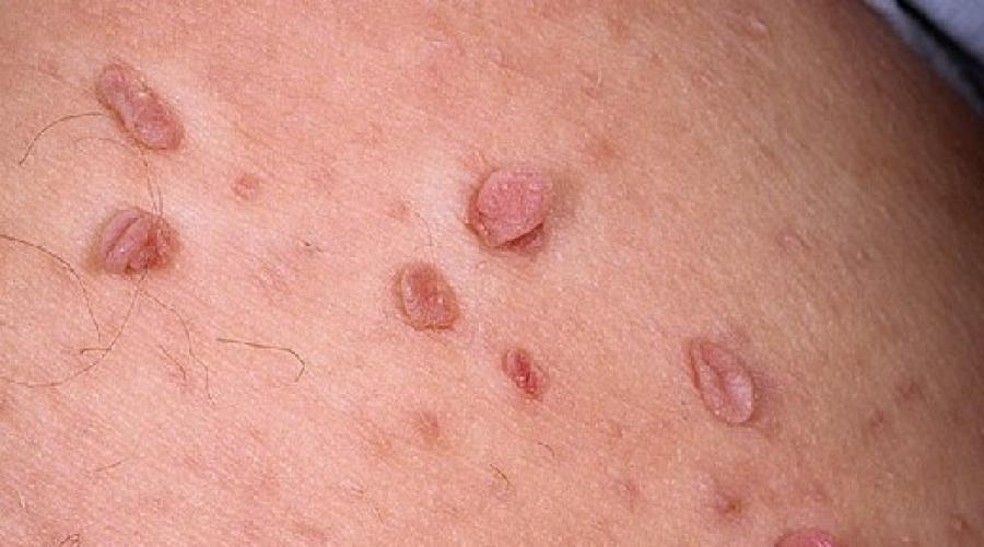 Papiloamele pe corp - cauze, metode de tratament și cum să opriți creșterea