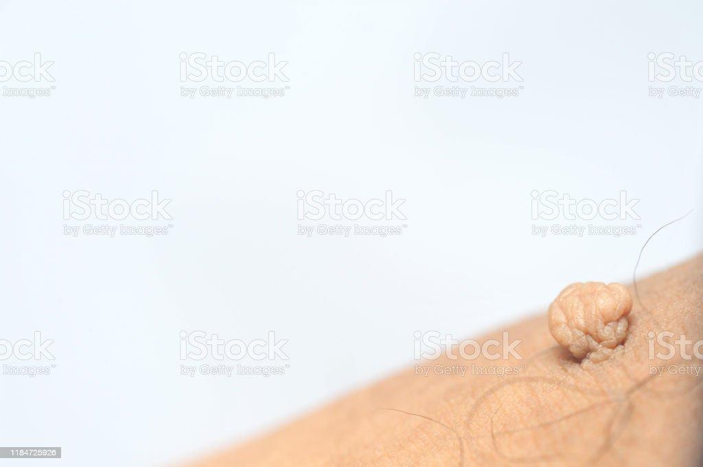 papiloma sub axila