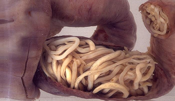 paraziti i bakterije u crevima