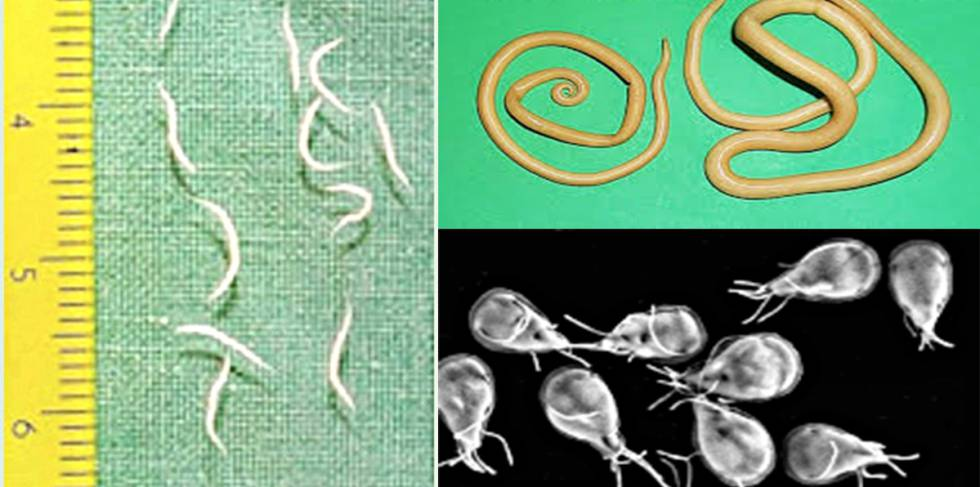 Sintomas por oxiuros, Enterobius vermicularis (oxiurii)