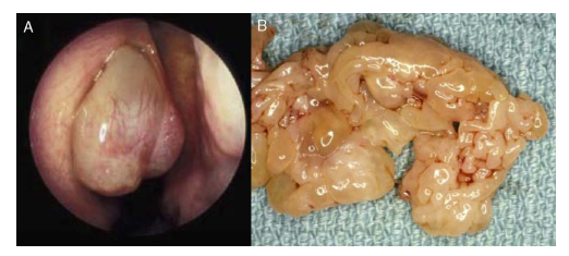 viermisori copii simptome helminth infection th2